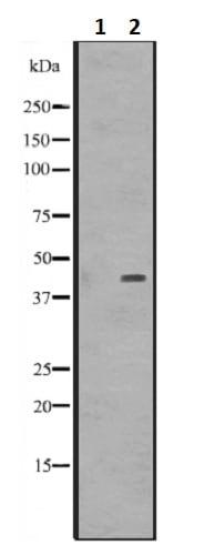 Western blot - Anti-DMRTB1 antibody (ab241275)