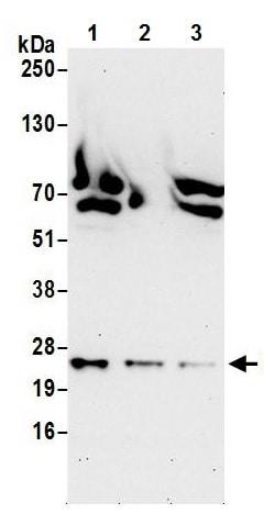 Western blot - Anti-FLR antibody (ab241286)