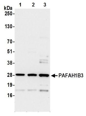 Western blot - Anti-PAFAH1B3 antibody (ab241288)