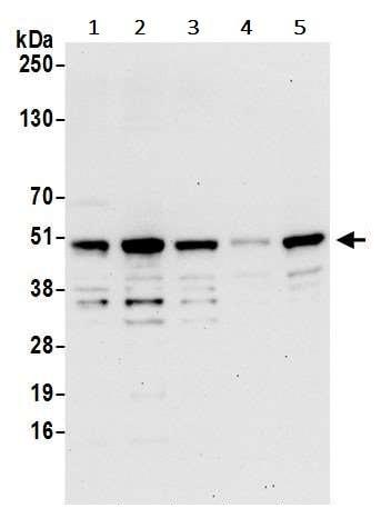 Western blot - Anti-SNX5 antibody (ab241295)