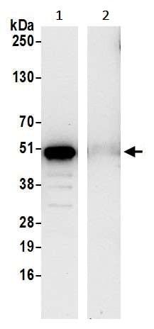 Immunoprecipitation - Anti-SNX5 antibody (ab241295)