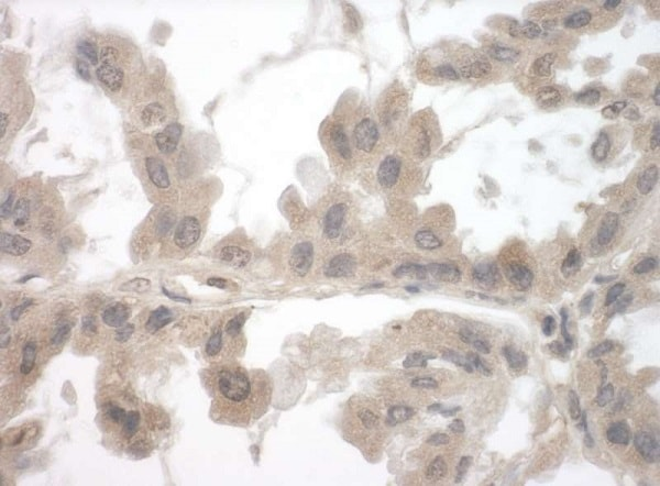 Immunohistochemistry (Formalin/PFA-fixed paraffin-embedded sections) - Anti-Toca-1 antibody (ab241299)
