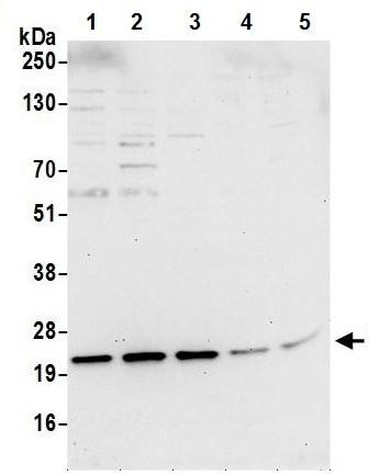 Western blot - Anti-TMP21 antibody (ab241312)