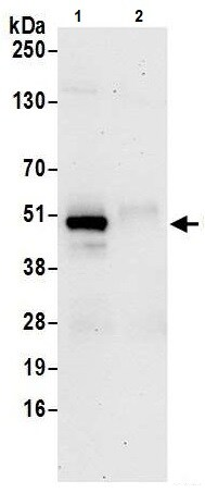 Immunoprecipitation - Anti-Calumenin antibody (ab241316)