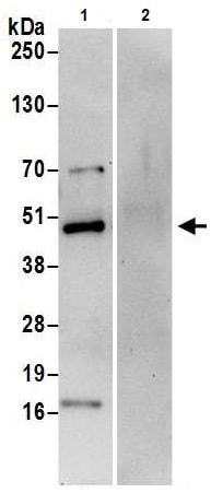 Immunoprecipitation - Anti-Calumenin antibody (ab241317)