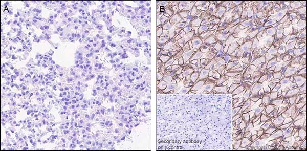 Immunohistochemistry (Formalin/PFA-fixed paraffin-embedded sections) - Anti-Claudin18.2 antibody [EPR19202-244] (ab241330)