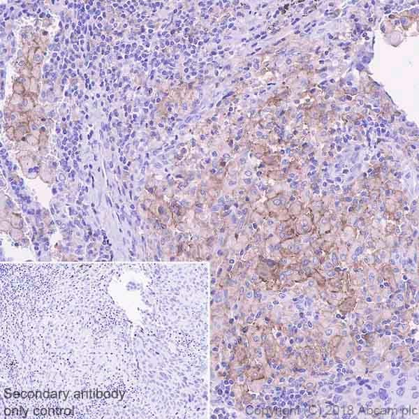 Immunohistochemistry (Formalin/PFA-fixed paraffin-embedded sections) - Anti-TIM 3 antibody [EPR22241] (ab241332)
