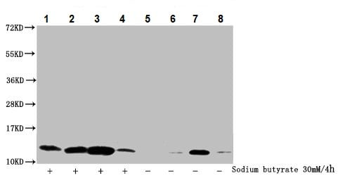 Western blot - Anti-Histone H4 (2-hydroxyisobutyryl K5) antibody (ab241334)