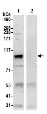 Immunoprecipitation - Anti-AFG2 antibody (ab241342)