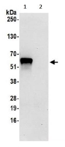 Immunoprecipitation - Anti-2 Hydroxy phytanoyl CoA lyase/HACL1 antibody (ab241353)