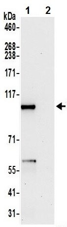 Immunoprecipitation - Anti-AFG2 antibody (ab241369)