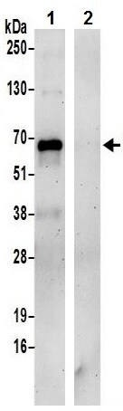 Immunoprecipitation - Anti-GRASP65 antibody (ab241370)