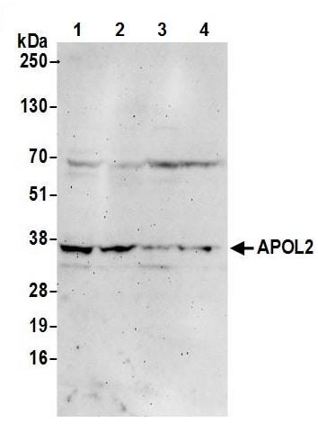 Western blot - Anti-APOL2 antibody (ab241378)