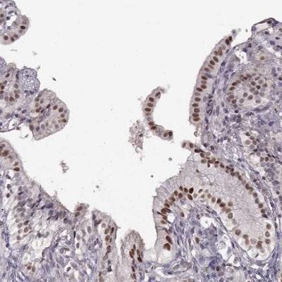 Immunohistochemistry (Formalin/PFA-fixed paraffin-embedded sections) - Anti-KLF6 antibody (ab241385)