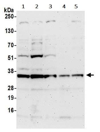 Western blot - Anti-NOSIP antibody (ab241401)
