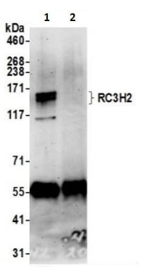 Immunoprecipitation - Anti-Roquin-2 antibody (ab241404)