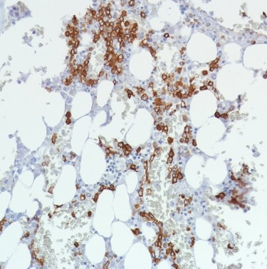 Immunohistochemistry (Formalin/PFA-fixed paraffin-embedded sections) - Anti-CD11b antibody [SP330] - BSA and Azide free (ab241408)