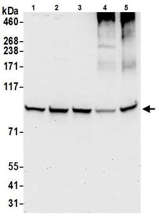 Western blot - Anti-HECTD3 antibody (ab241413)