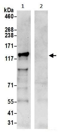 Immunoprecipitation - Anti-RABGAP1 antibody (ab241416)