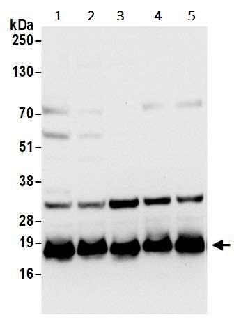 Western blot - Anti-RPL27/RPL27A antibody (ab241417)