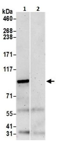 Immunoprecipitation - Anti-WBP11 antibody (ab241432)