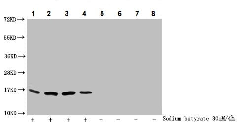 Western blot - Anti-Histone H3 (butyryl K79) antibody (ab241462)