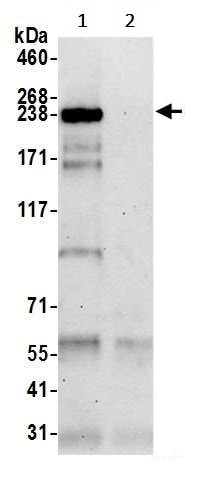 Immunoprecipitation - Anti-CNOT1 antibody (ab241479)