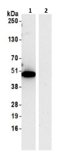 Immunoprecipitation - Anti-TTC4 antibody (ab241507)