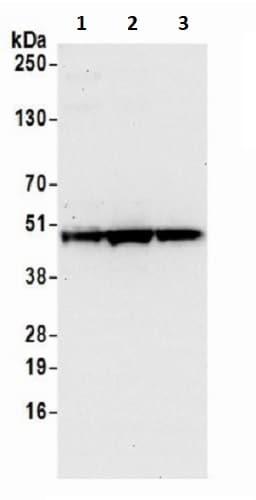 Western blot - Anti-TTC4 antibody (ab241507)