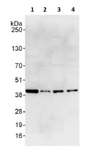 Western blot - Anti-RPL6 antibody (ab241509)