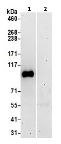 Immunoprecipitation - Anti-STIM2 antibody (ab241510)