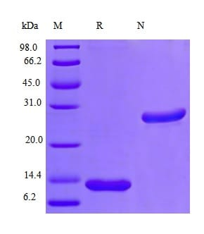 SDS-PAGE - Recombinant rhesus monkey IL-5 protein (Active) (ab241522)