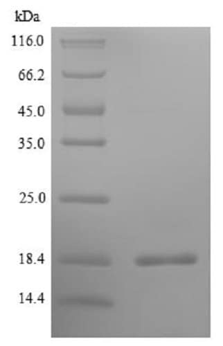 SDS-PAGE - Recombinant Pig IL-5 protein (His tag) (ab241537)