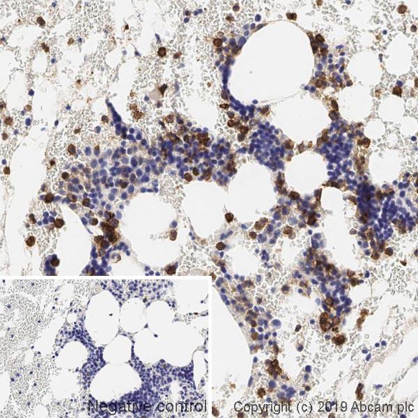 Immunohistochemistry (Formalin/PFA-fixed paraffin-embedded sections) - Anti-CD15 antibody [153B] (ab241552)