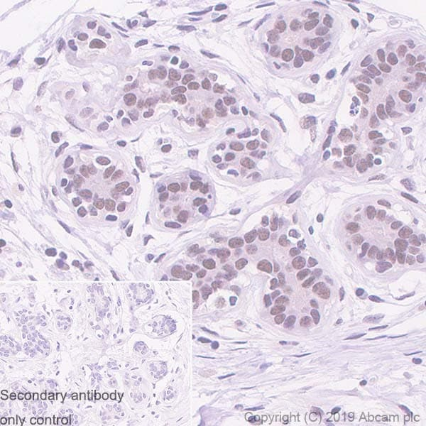 Immunohistochemistry (Formalin/PFA-fixed paraffin-embedded sections) - Anti-MMS21 antibody [215C] (ab241564)