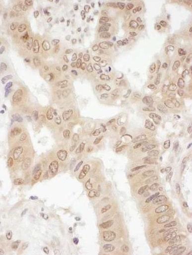Immunohistochemistry (Formalin/PFA-fixed paraffin-embedded sections) - Anti-eIF2B4 antibody (ab241573)