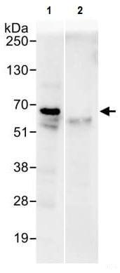 Immunoprecipitation - Anti-eIF2B4 antibody (ab241573)