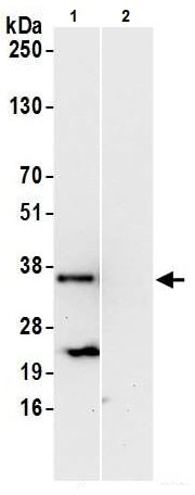 Western blot - Anti-MAPK1IP1L antibody (ab241580)