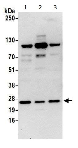 Western blot - Anti-SEC22B antibody (ab241585)