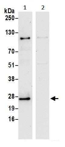 Immunoprecipitation - Anti-SEC22B antibody (ab241585)
