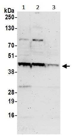 Western blot - Anti-H-ERA antibody (ab241587)