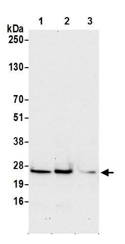Western blot - Anti-HSPC111 antibody (ab241590)