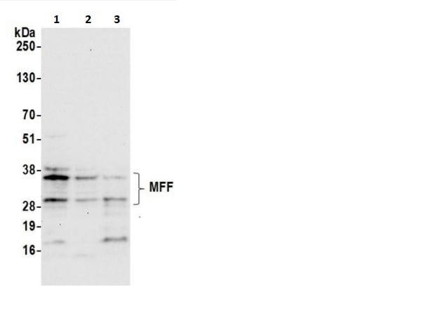 Western blot - Anti-MFF antibody (ab241597)
