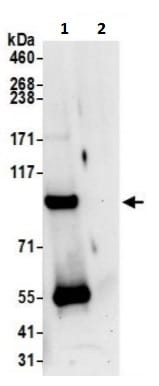 Immunoprecipitation - Anti-TSR1 antibody (ab241598)