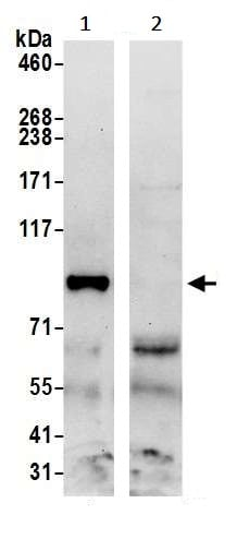 Immunoprecipitation - Anti-TSR1 antibody (ab241604)