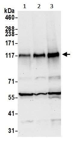 Western blot - Anti-ZNF451/COASTER antibody (ab241962)