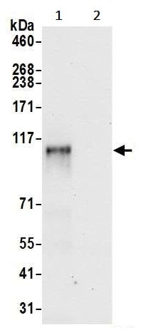 Immunoprecipitation - Anti-ZNF451/COASTER antibody (ab241962)
