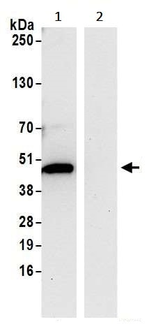 Immunoprecipitation - Anti-C6orf211/ARMT1 antibody (ab241977)