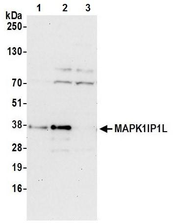 Western blot - Anti-MAPK1IP1L antibody (ab241978)