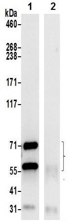 Immunoprecipitation - Anti-Prolyl Endopeptidase antibody (ab241984)